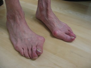deformed_feet